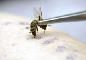 лечение болезней укусами пчел